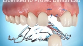 Anterior Tooth Implant (with Flipper)